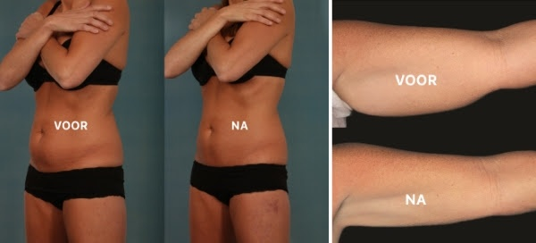 Voor en na de behandeling