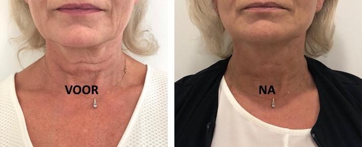 Profhilo behandeling Face & Body Lounge - Hals voor en na